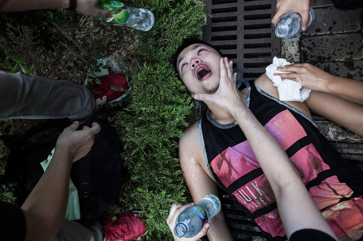 An injured protester is tended to after clashing with riot police outside Hong Kong government complex on September 27, 2014 in Hong Kong.